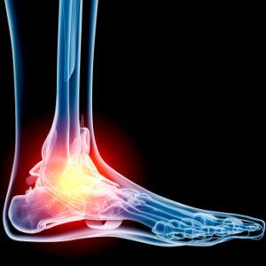 Injury-Ankle